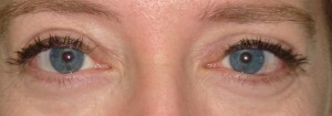 Post-op Thyroid Eyelid Surgery by Dr Kwitko 2