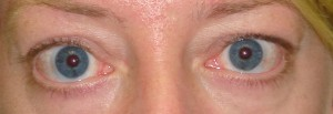 Pre Thyroid Eyelid Surgery by Dr Kwitko