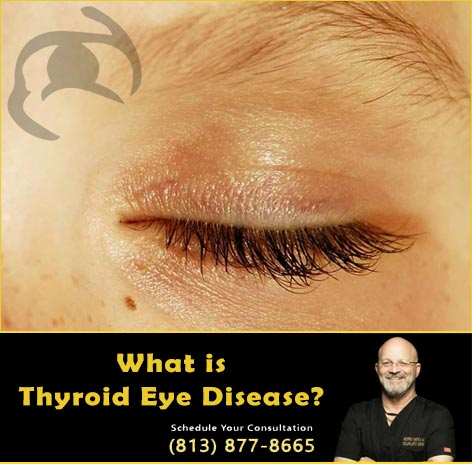 What is Thyroid Eye Disease