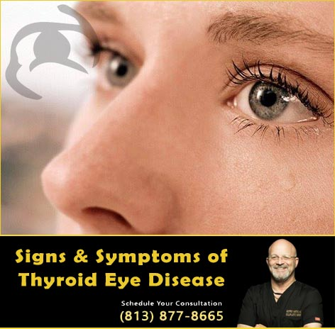 Thyroid Eyelid Disease Symptoms